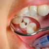Photo of caries in human teeth.
